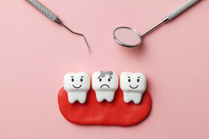 Penyebab Karies gigi dan Tips Cerdas Mencegahnya
